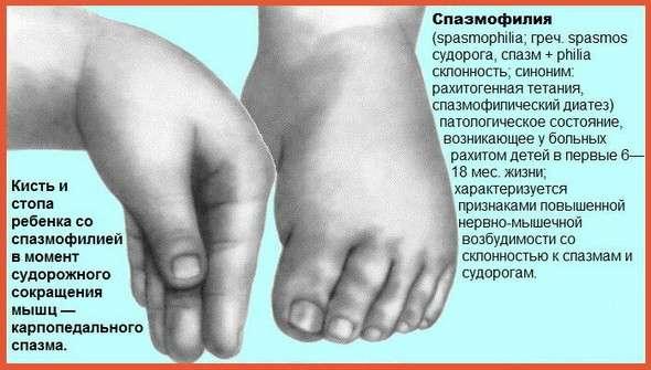 Спазмофілія: симптоми і лікування
