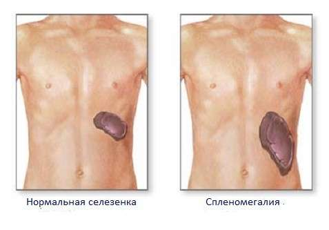 Спленомегалія: симптоми і лікування