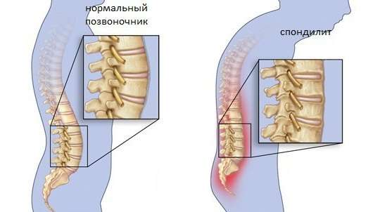 Спондиліт: симптоми і лікування