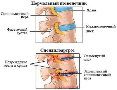 Спондилоартроз шийного відділу: симптоми і лікування