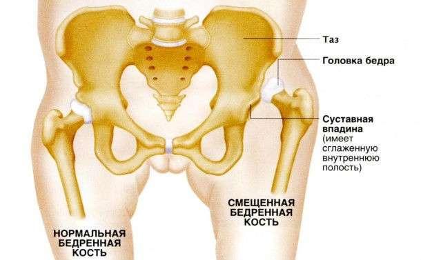 Вроджений вивих стегна: симптоми і лікування