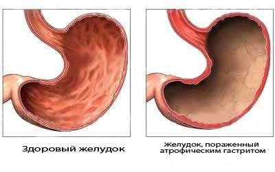 Хронічний атрофічний гастрит: симптоми і лікування