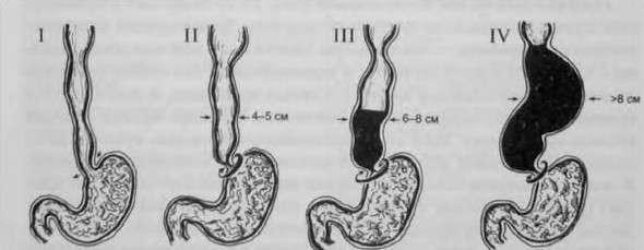 Ахалазія кардії стравоходу: симптоми і лікування