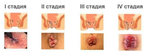 Геморой у чоловіків: симптоми і лікування