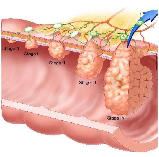 Рак прямої кишки: симптоми і лікування
