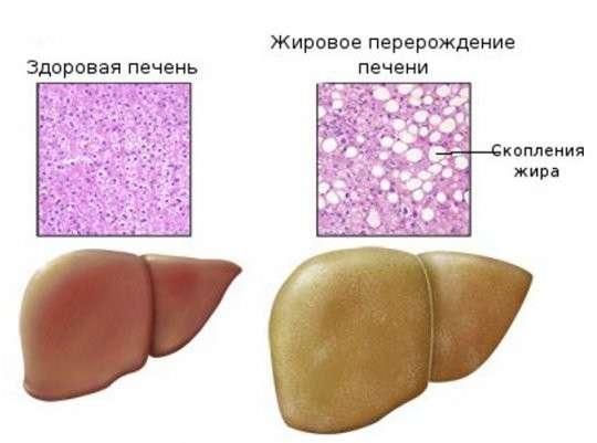 Стеатоз: симптоми і лікування