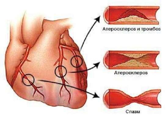 Стенокардія: симптоми і лікування