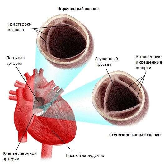 Стеноз легеневої артерії: симптоми і лікування
