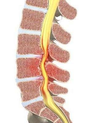 Стеноз хребетного каналу: симптоми і лікування