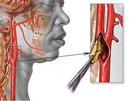 Стеноз сонної артерії: симптоми і лікування