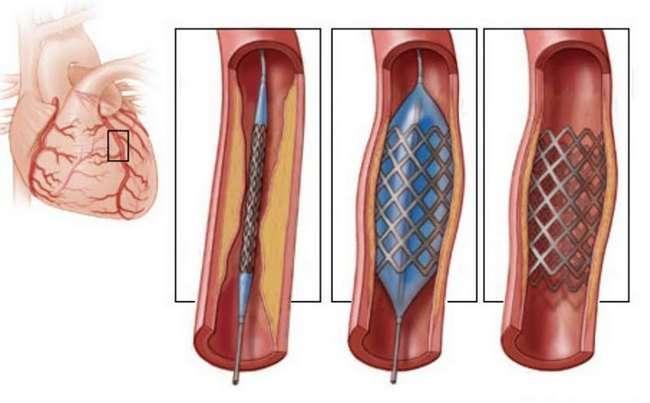 Коронарна недостатність: симптоми і лікування