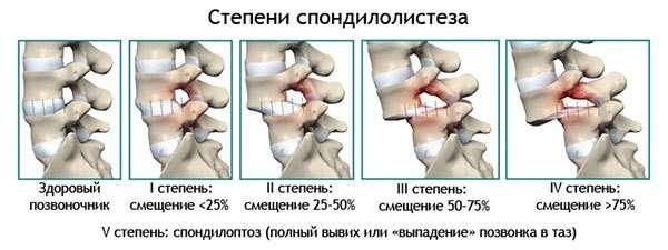 Зміщення хребців: симптоми і лікування