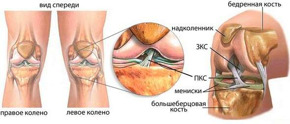 Розрив хрестоподібної звязки: симптоми і лікування