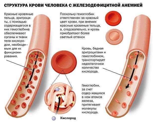 Залізодефіцитна анемія у дітей: симптоми і лікування