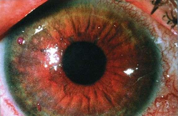 Синдром сухого ока: симптоми і лікування