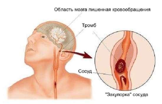 Ішемічний інсульт: симптоми і лікування