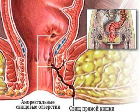 Свищ прямої кишки: симптоми і лікування