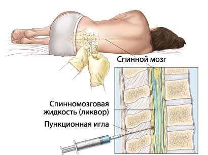 Хвороба Кавасакі: симптоми і лікування