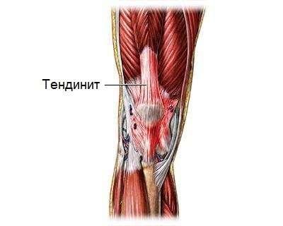Тендиніт: симптоми і лікування