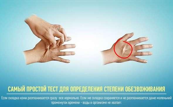 Зневоднення: симптоми і лікування