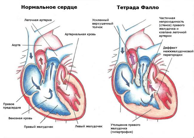 Тетрада Фалло: симптоми і лікування