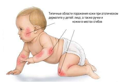 Дерматит у дітей: симптоми і лікування