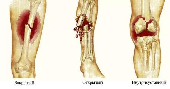 Патологічний перелом: симптоми і лікування