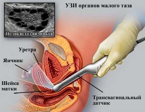 Маткова кровотеча: симптоми і лікування