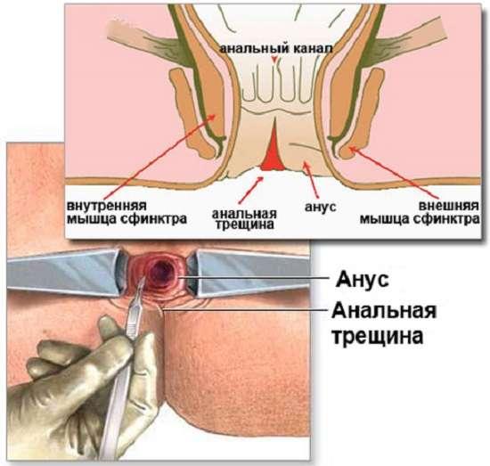 Тріщина прямої кишки: симптоми і лікування