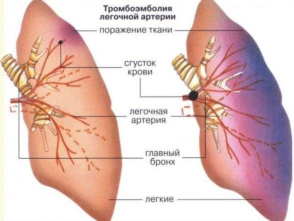 Тромбоемболія: симптоми і лікування