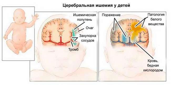 Церебральна ішемія: симптоми і лікування
