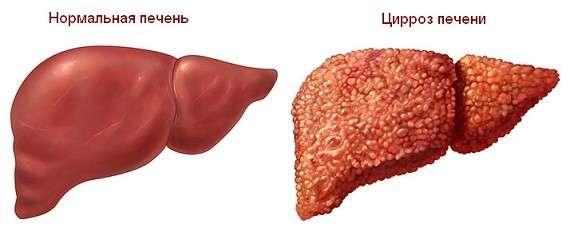Печінкова кома: симптоми і лікування