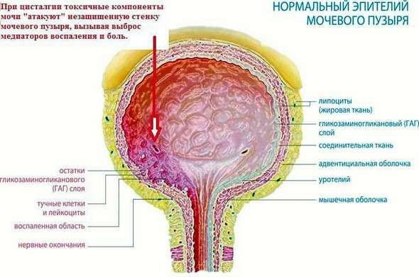 Цисталгія: симптоми і лікування