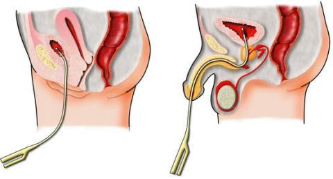 Епіспадія: симптоми і лікування