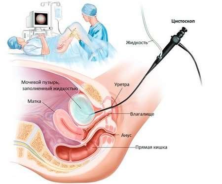 Міхурово-сечовідний рефлюкс: симптоми і лікування
