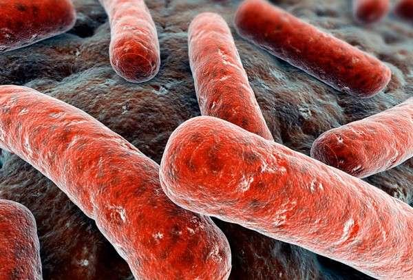 Туберкульозний плеврит: симптоми і лікування