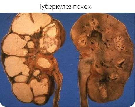 Туберкульоз нирок: симптоми і лікування