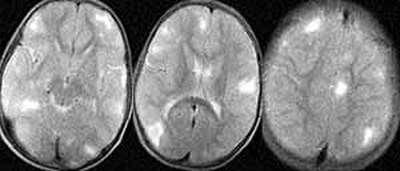 Туберозний склероз: симптоми і лікування