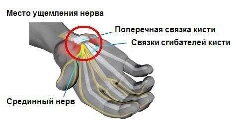 Тунельний синдром: симптоми і лікування