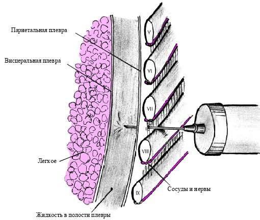 Ексудативний плеврит (гідроторакс): симптоми і лікування
