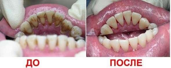Зубний камінь: симптоми і лікування