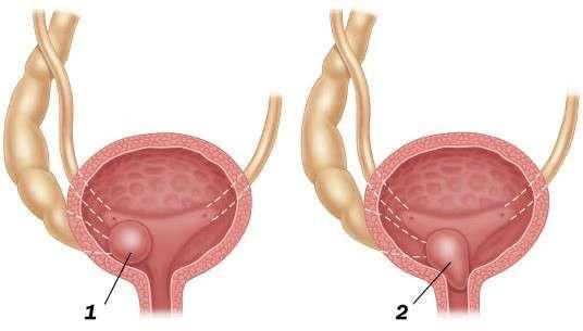 Уретероцеле: симптоми і лікування