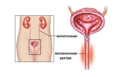 Уретрит у жінок: симптоми і лікування