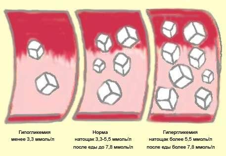 Гіперглікемія: симптоми і лікування