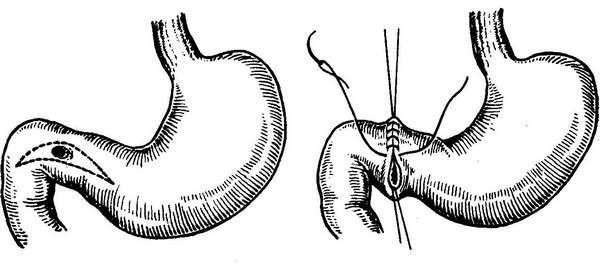 Проривна виразка шлунка: симптоми і лікування