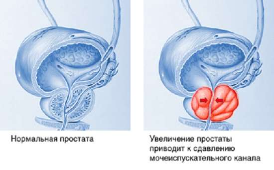 Простатит: симптоми і лікування