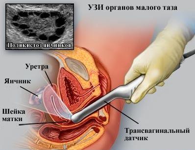 Запалення яєчників: симптоми і лікування