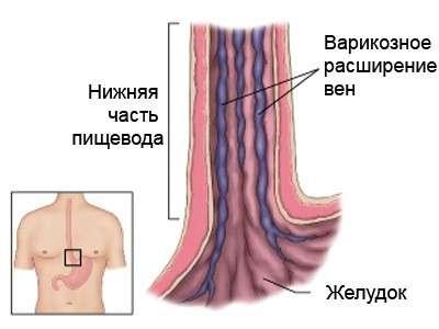 Варикозне розширення вен стравоходу: симптоми і лікування