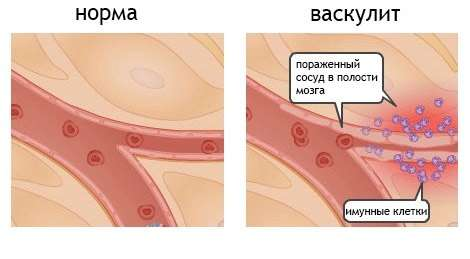 Системний васкуліт: симптоми і лікування
