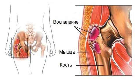 Трохантерит кульшового суглоба: симптоми і лікування